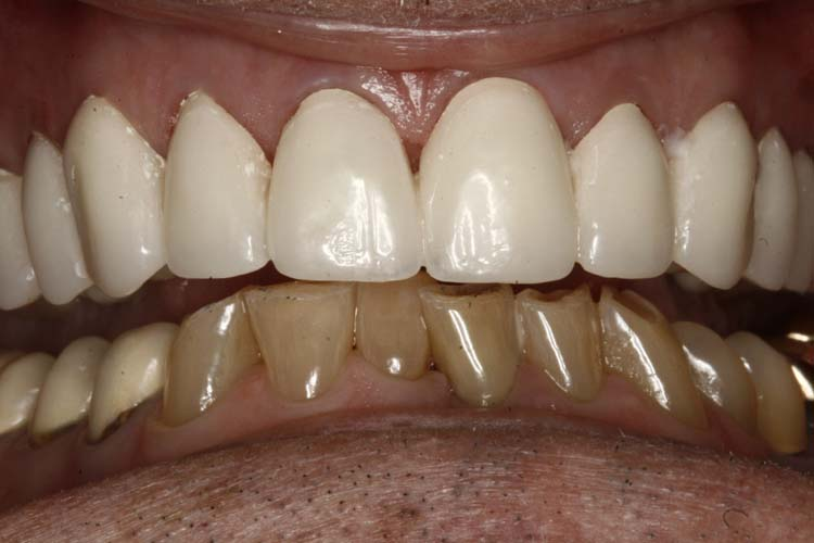 Enhanced Dental Care 2 after