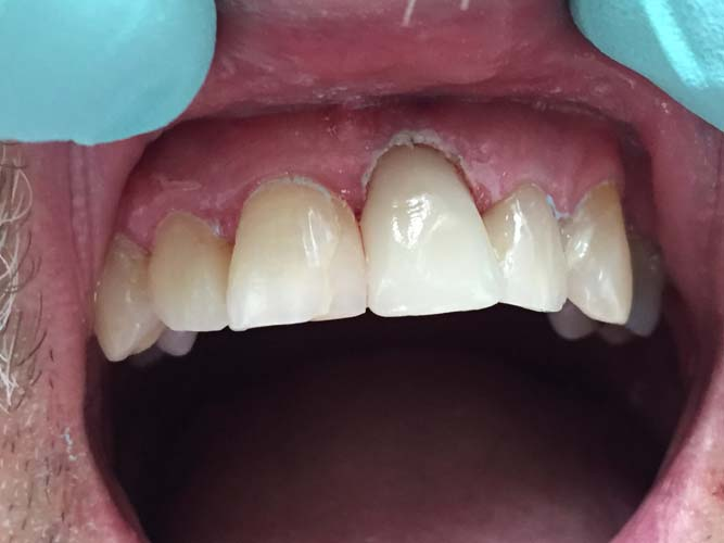 Enhanced Dental Care 3 after